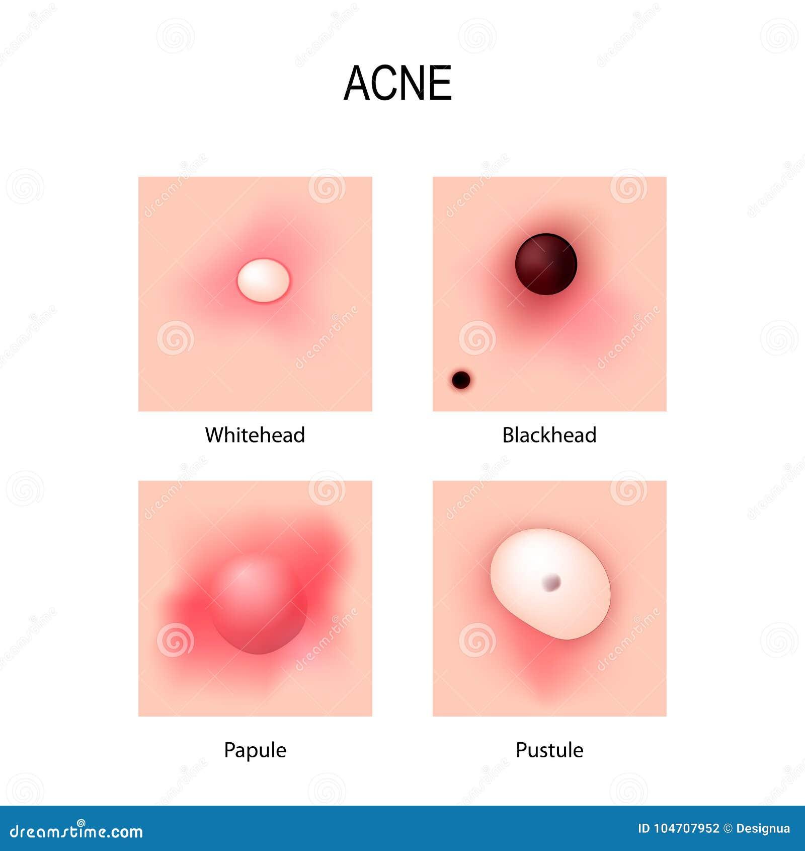 Vulgaris d acné Étapes du développement Types de boutons