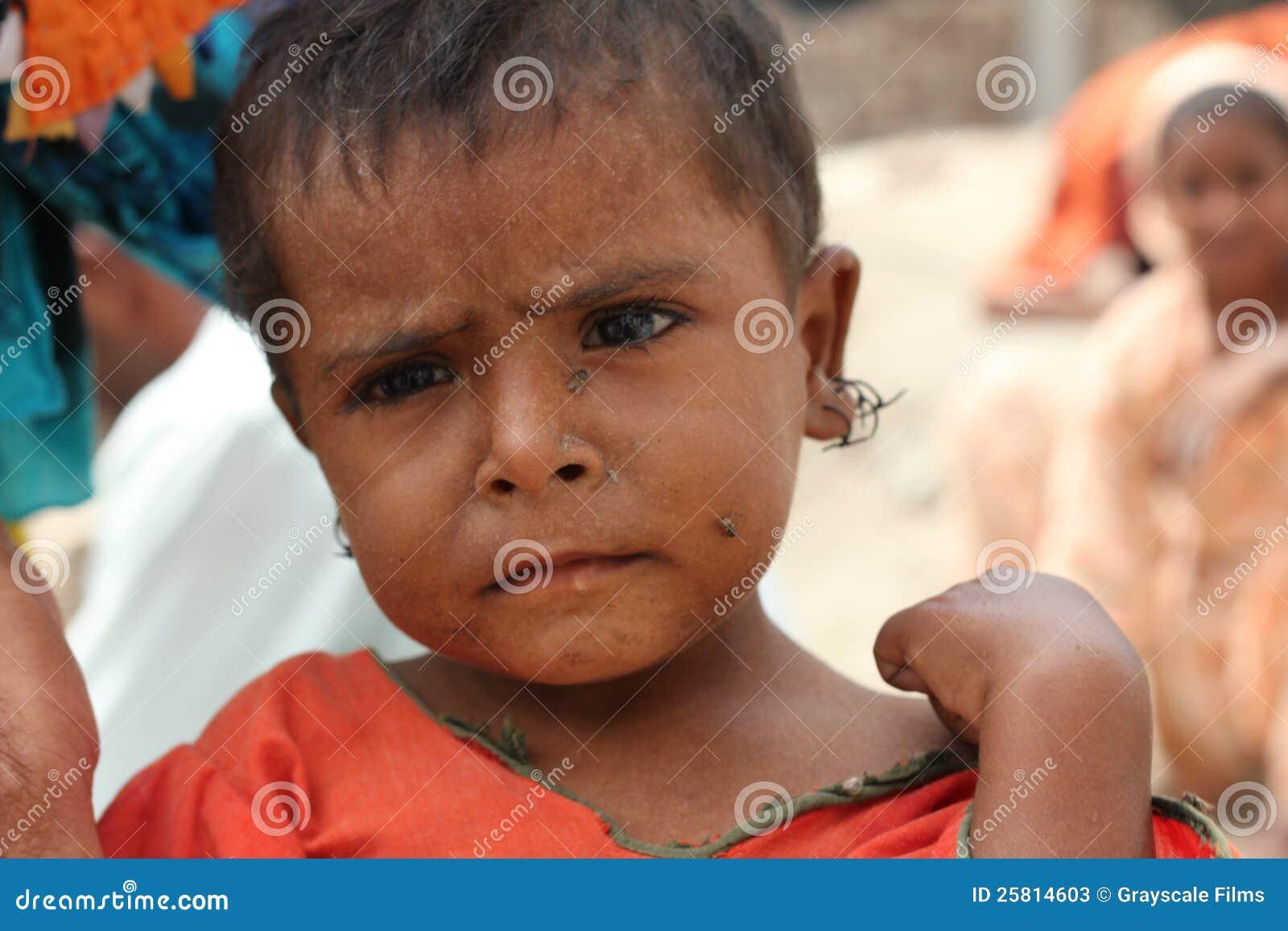 W Pakistan uchodźcy Dziecko