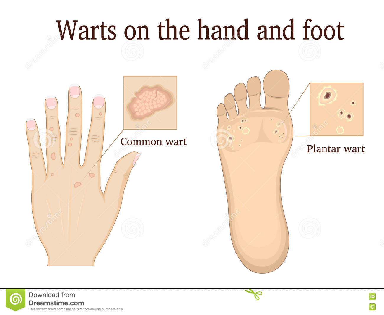Warts on the hand and foot stock vector. Illustration of furuncle ...