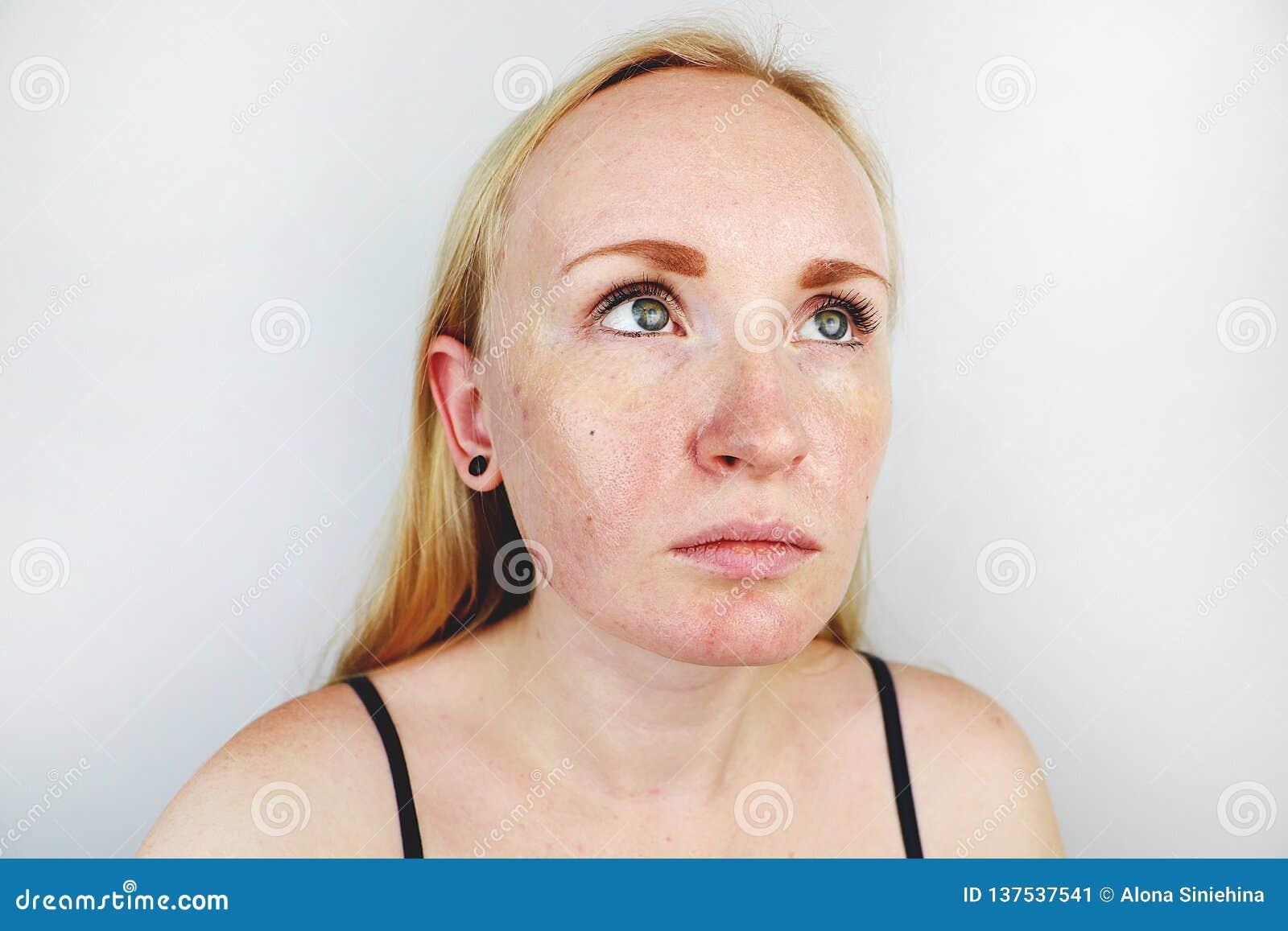 Wazeliniarska i problemowa skóra Portret blondynki dziewczyna z trądzikiem, wazeliniarską skórą i pigmentacją,