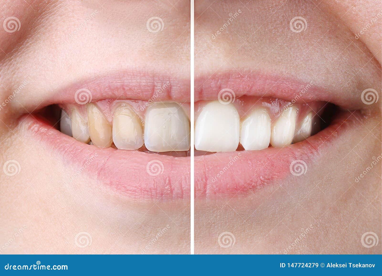 Weiß werden oder Bleichbehandlung vorher und nachher Frauenzähne und Lächeln, Abschluss oben, auf weißem