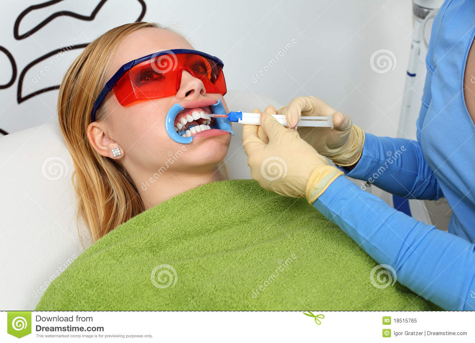 Weiß werdene Zähne