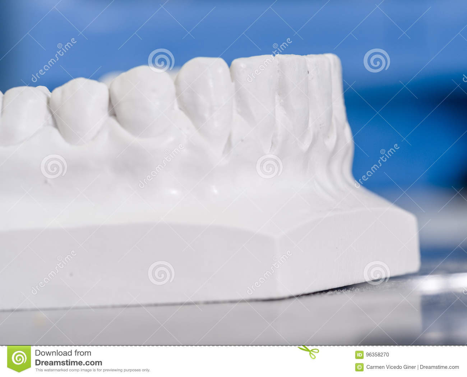 Weiße Form zahnmedizinisch vom Gips