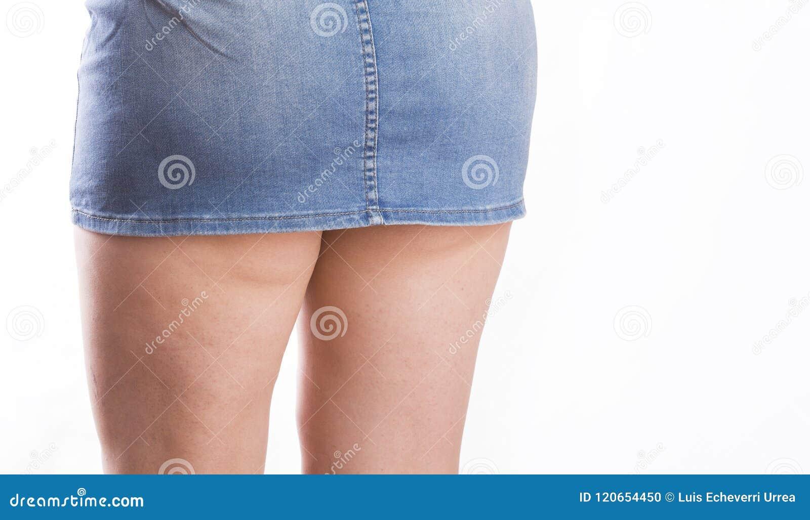 Weibliche Beinschenkel mit Cellulite Der Körperpflege, überladenen und des Nährens Konzept des Hautproblems,