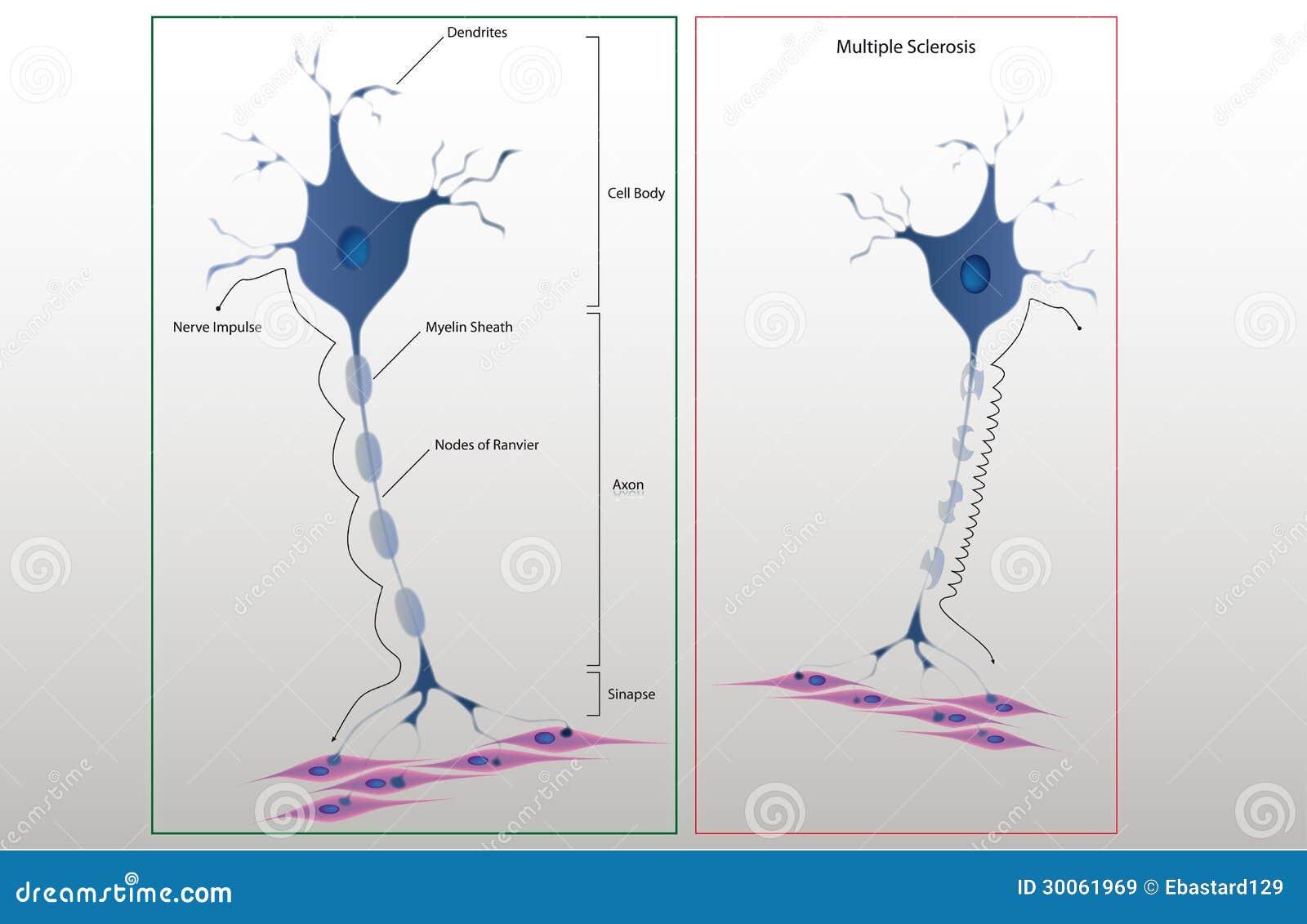 Plan struktura typowy neuron