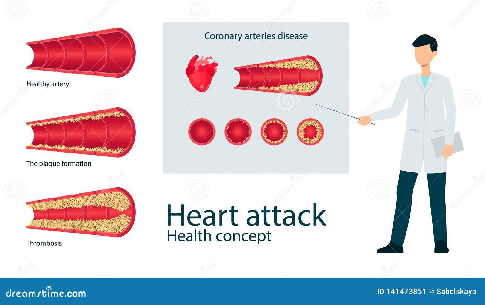 Wektorowy atherosclerosis żyły arterii throms mieszkania set