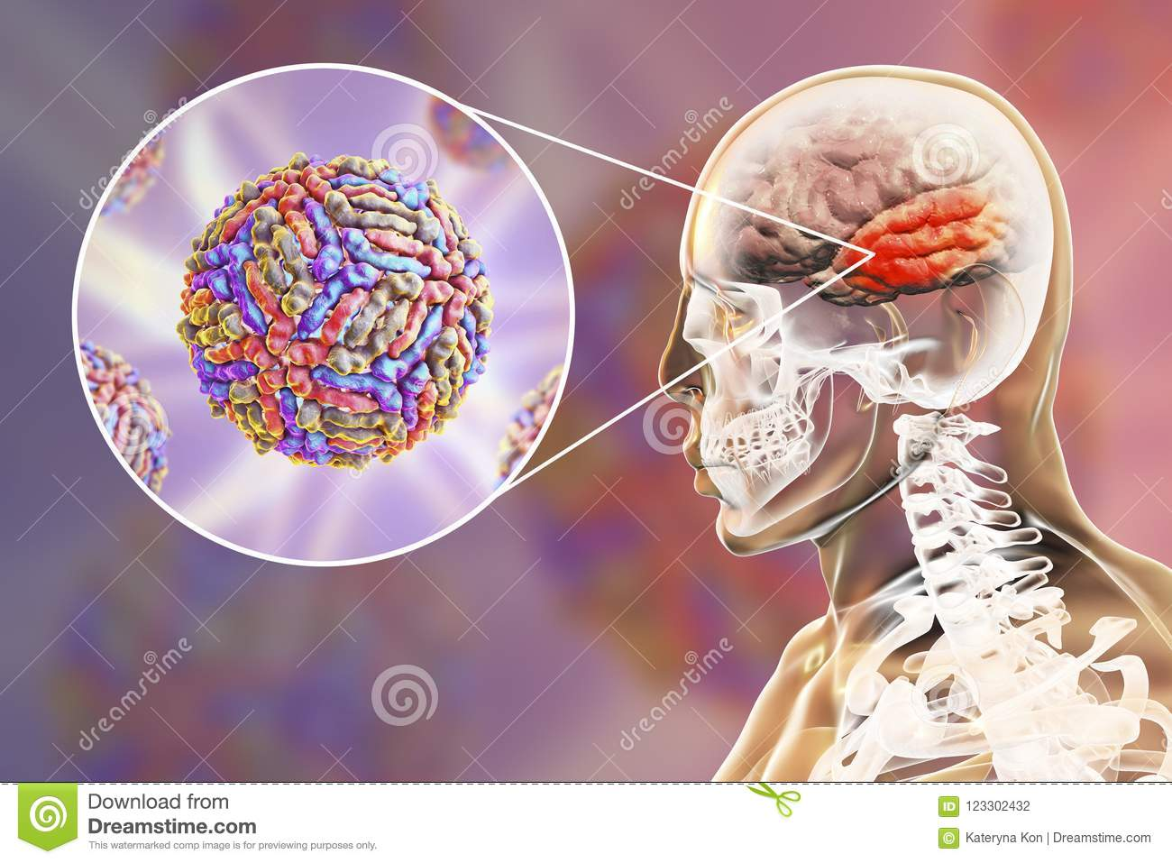 west nile virus encephalitis stock illustration illustration of