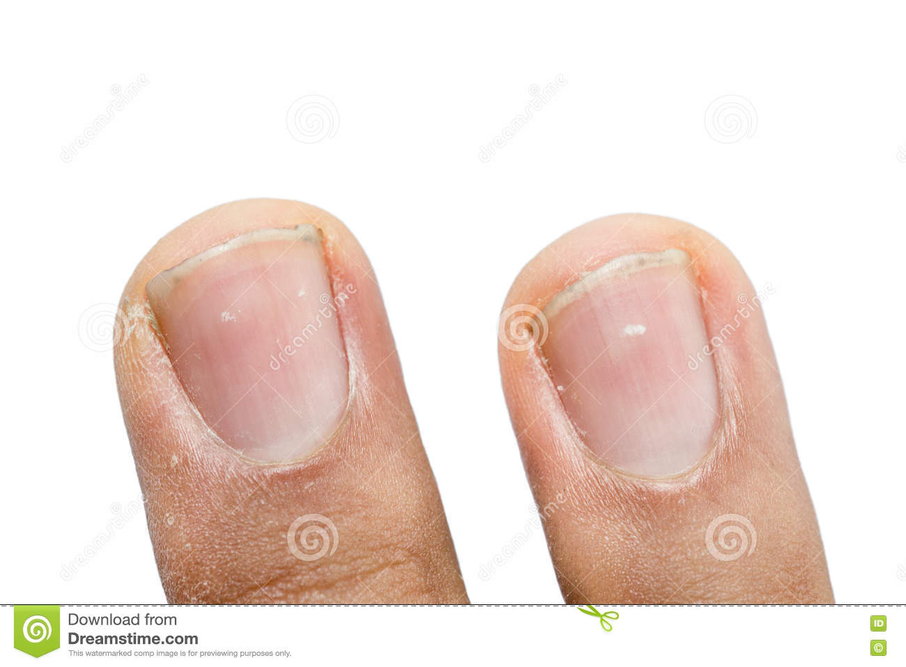 White Spots And Vertical Ridges On The Fingernails Stock Photography ...