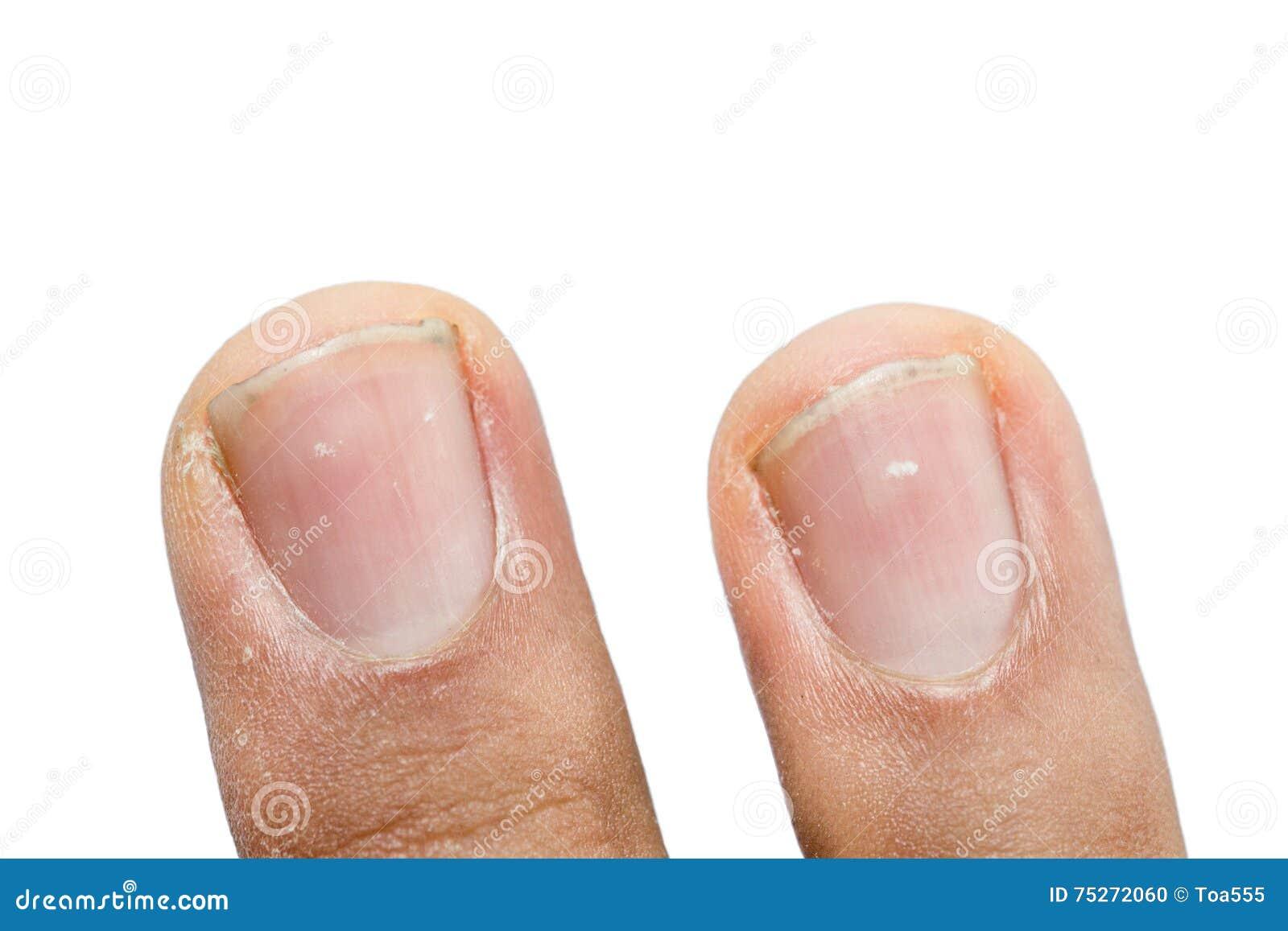 Если белые пятнышки на ногтях