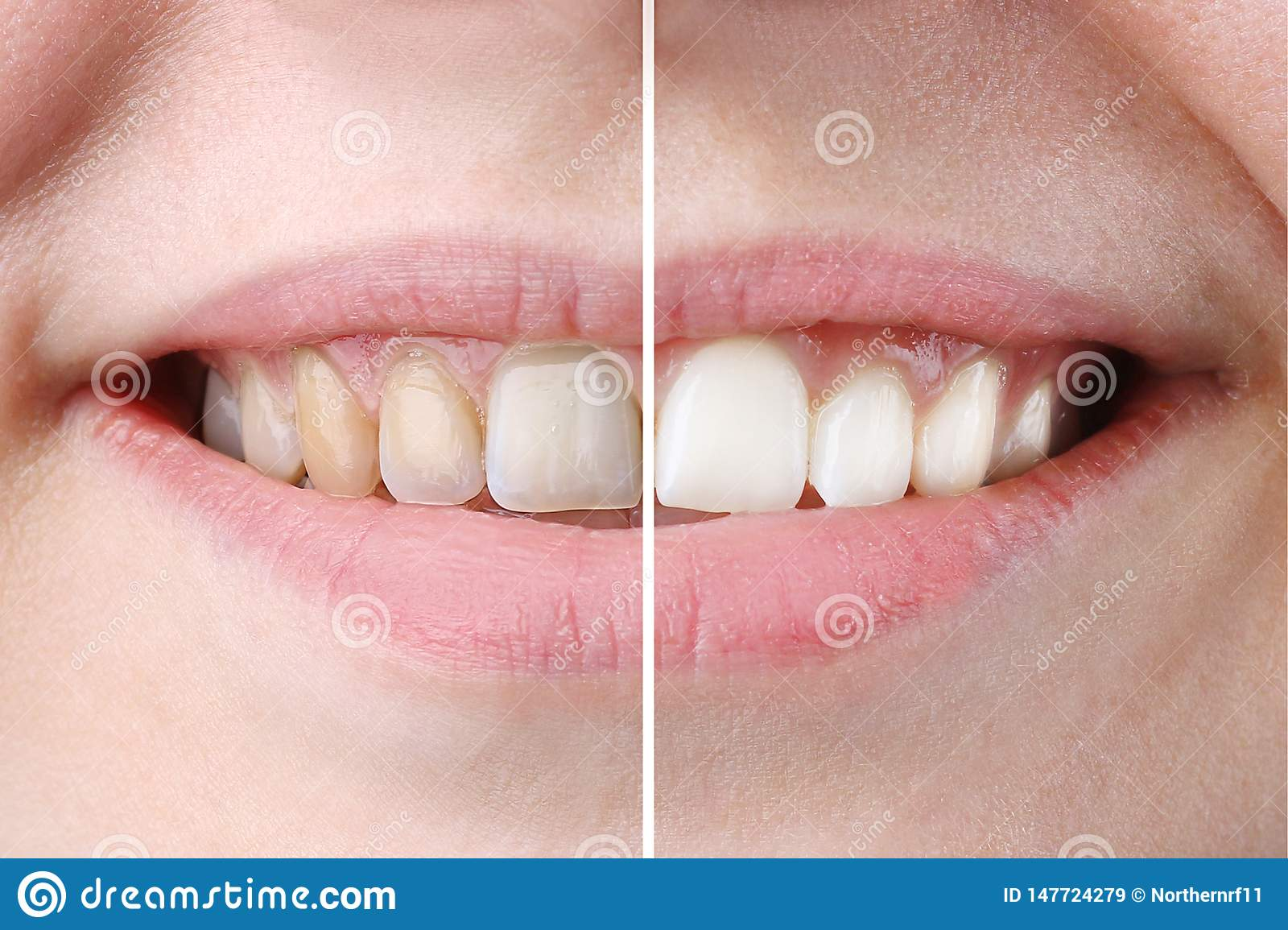 Whitening or bleaching treatment ,before and after ,woman teeth and smile, close up,  on white
