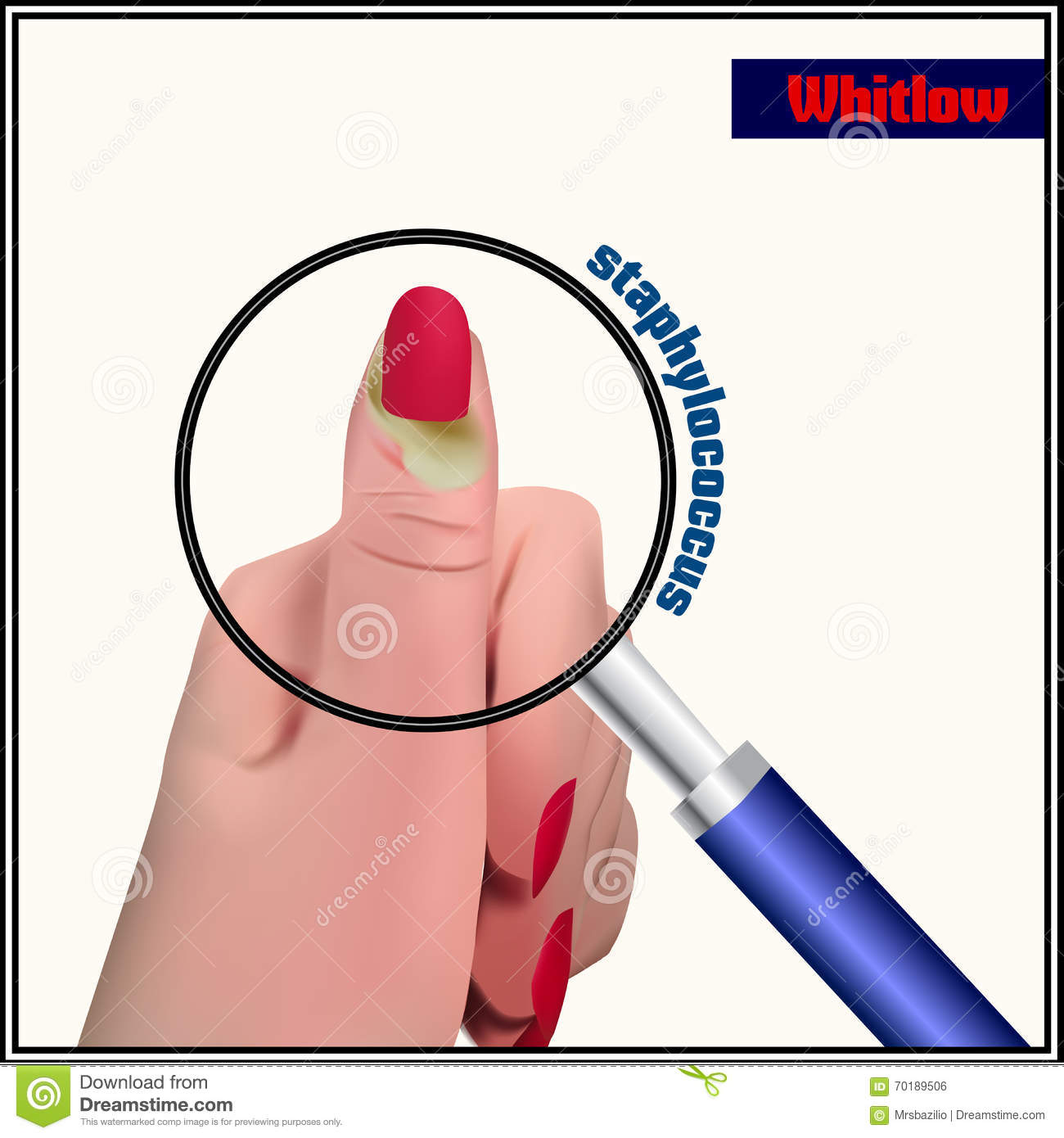 Whitlow stock vector illustration of hand dermatologist 70189506 royalty free vector pooptronica Gallery