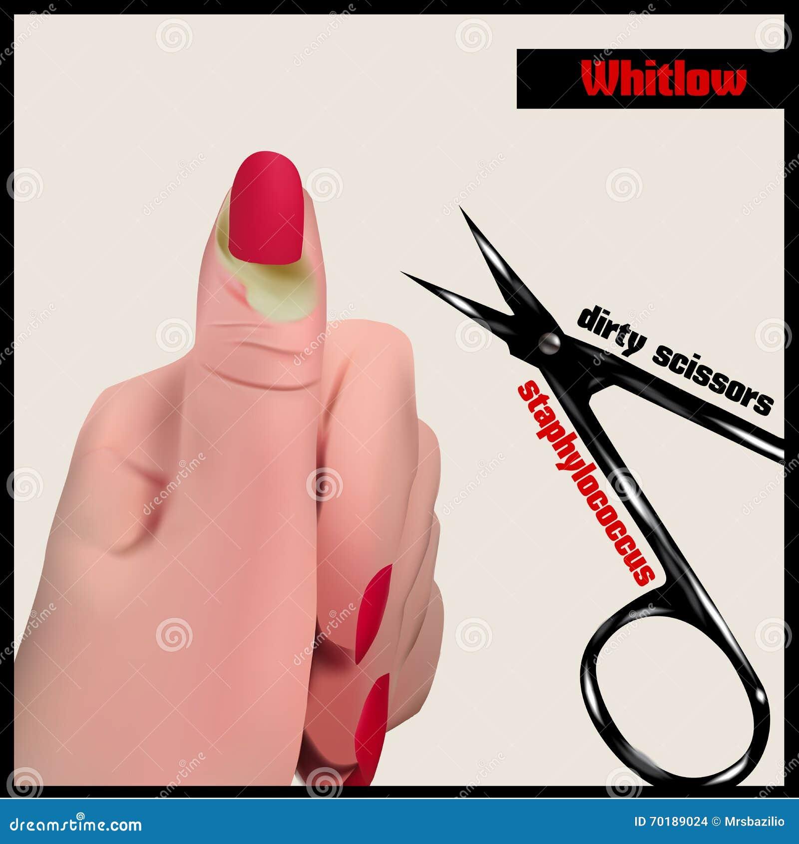 Whitlow  Illustration 70189024 - Megapixl
