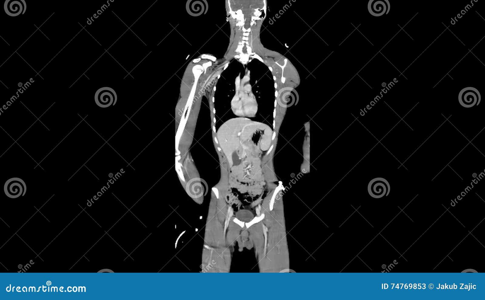 Whole Body CT / MRI Scan, Frontal - Coronal Plane Stock Video ...