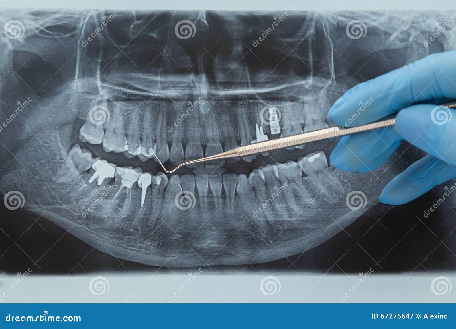 Wiązka dentystyczne x prześwietlenie