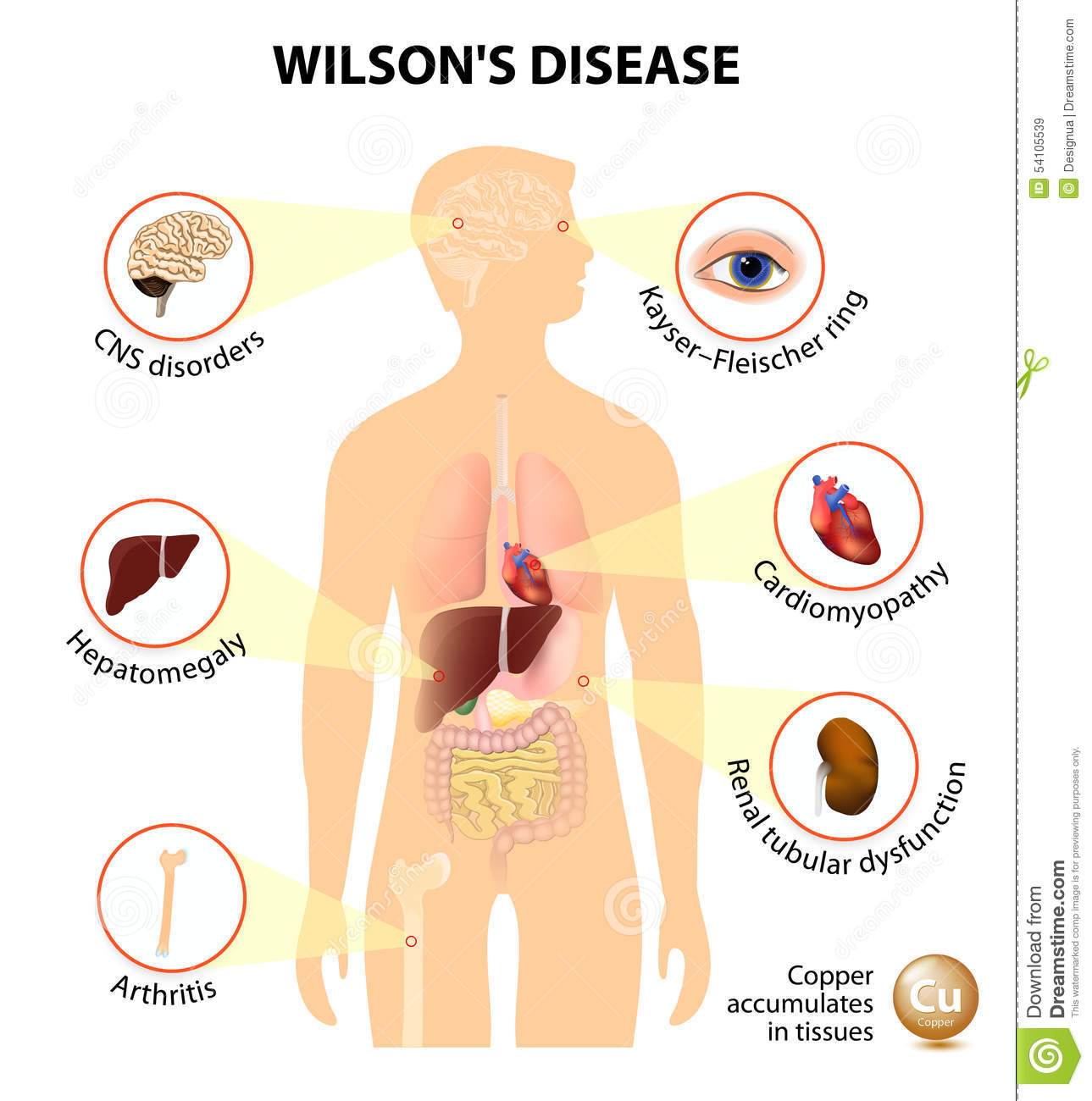 Wilson S Disease Stock Photo Image 54105539