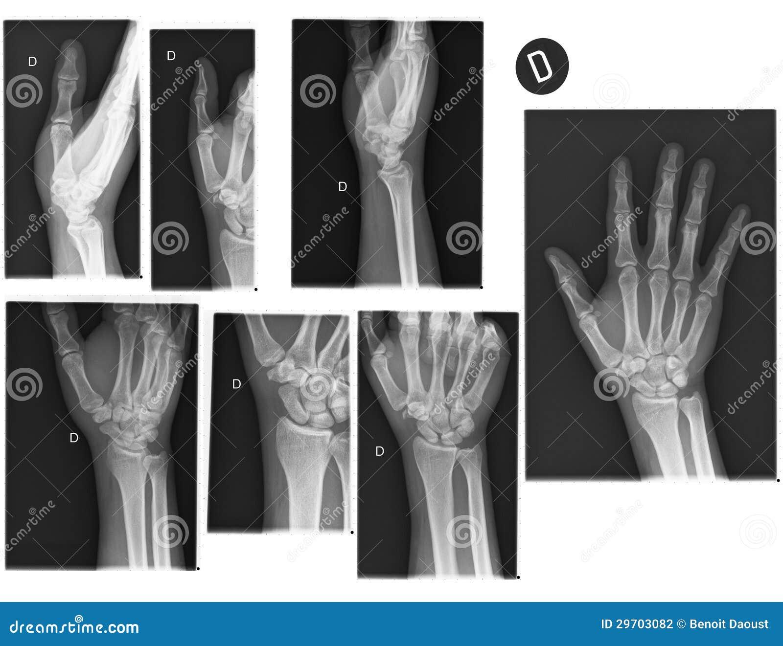 Ungewöhnlich Hand Und Handgelenk Knochen Anatomie Ideen ...