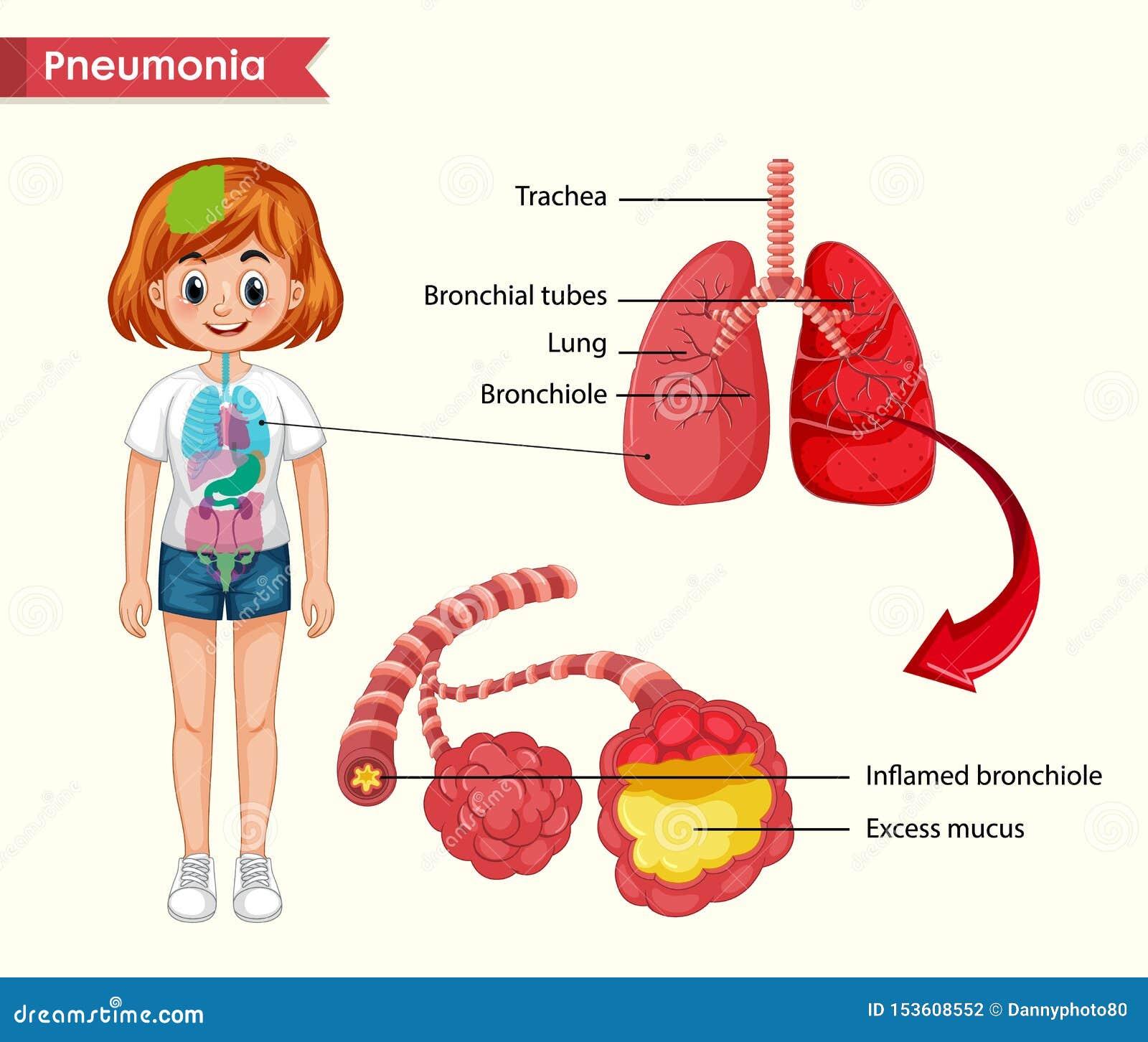Wissenschaftliche medizinische Illustration des Pneumoniekonzeptes