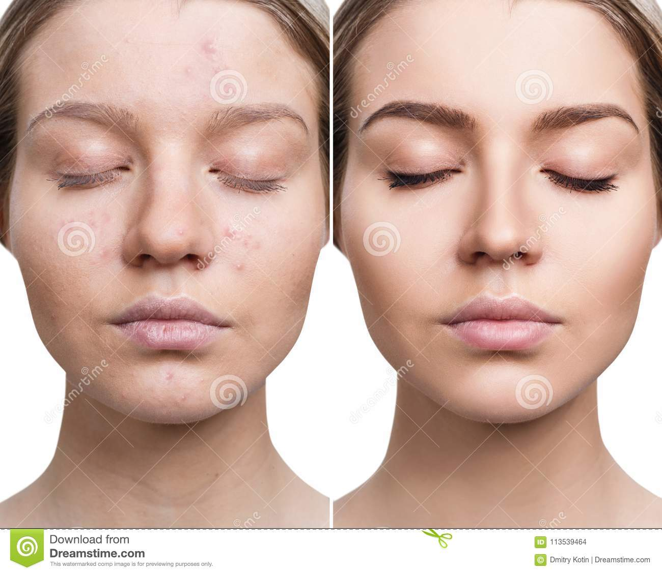 Woman With Acne Before And After Treatment Stock Photo Image Of Cosmetic Makeup 113539464