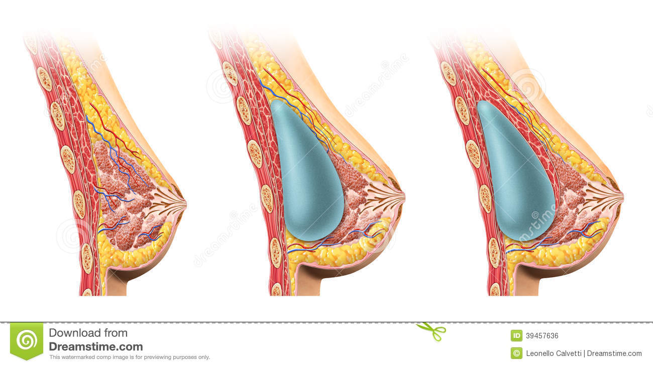 Woman Breast Implant Cross Section  Stock Illustration