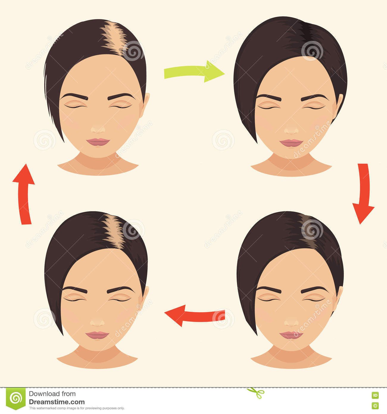 how to grow out a shaved head woman