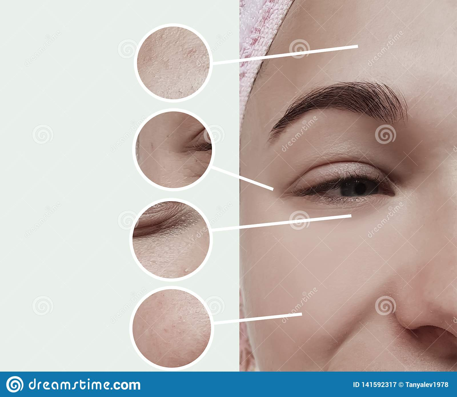 Woman eyes wrinkles bloating dermatology therapy concept contrast before and after collage