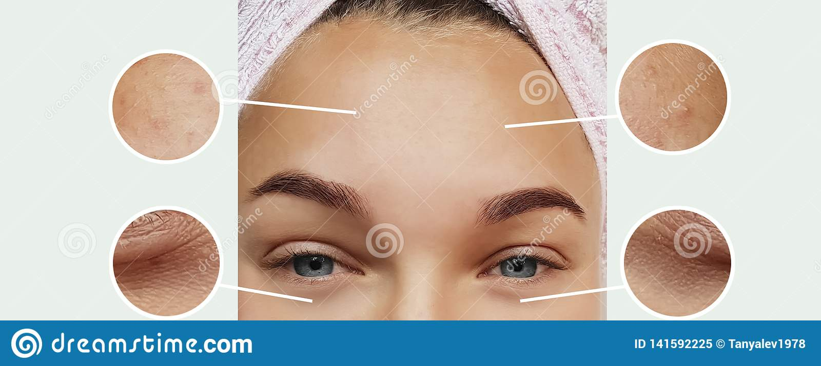 Woman eyes wrinkles bloating dermatology correction therapy concept contrast before and after collage