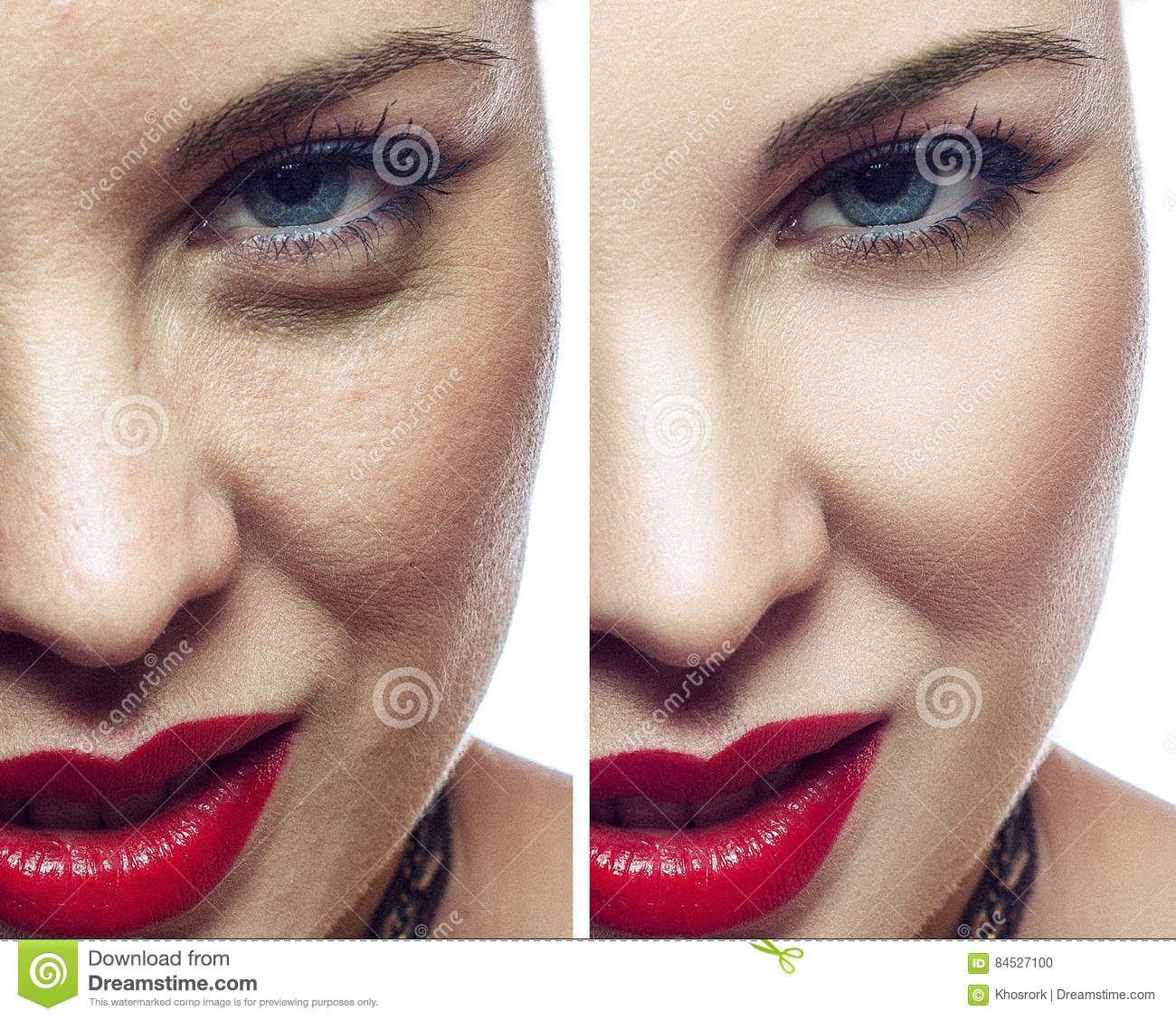 Woman Face Before And After Cosmetic Procedure. Facial
