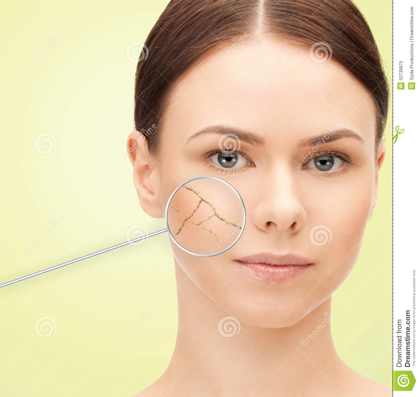 Skin Care People: Woman Face With Dry Dehydrated Skin Stock Illustration