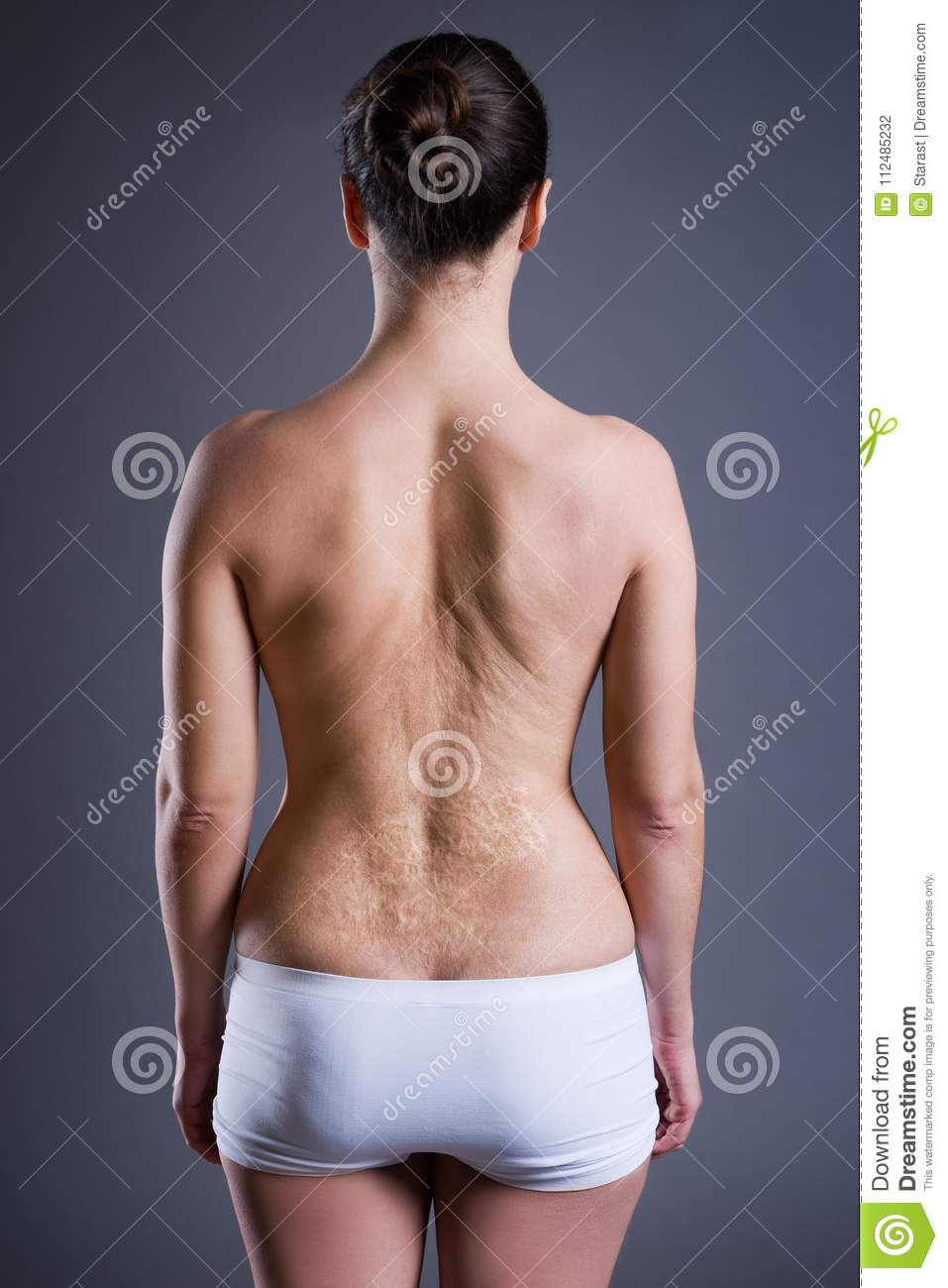 Woman with a large scar after burn on the back