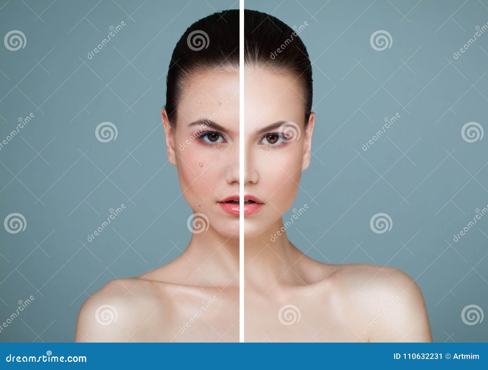 Woman modelo joven con problema de piel y el primer claro de la piel