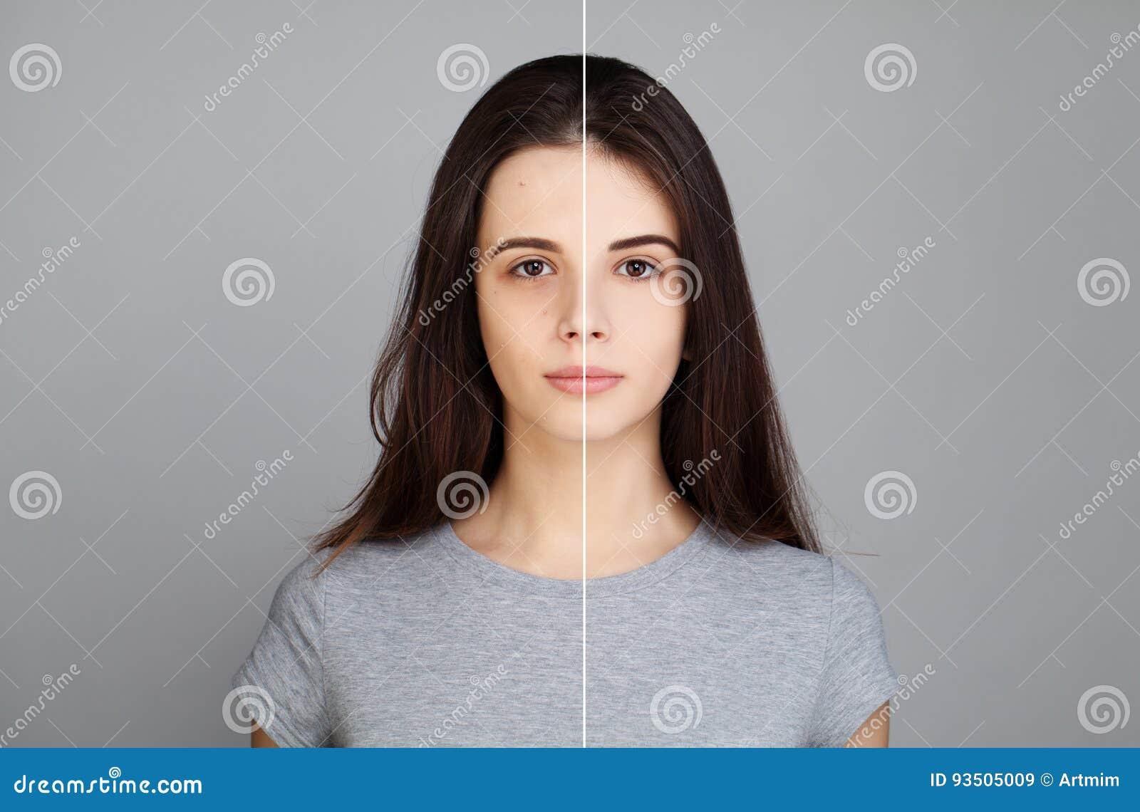 Woman modelo novo com problema de pele Cara fêmea