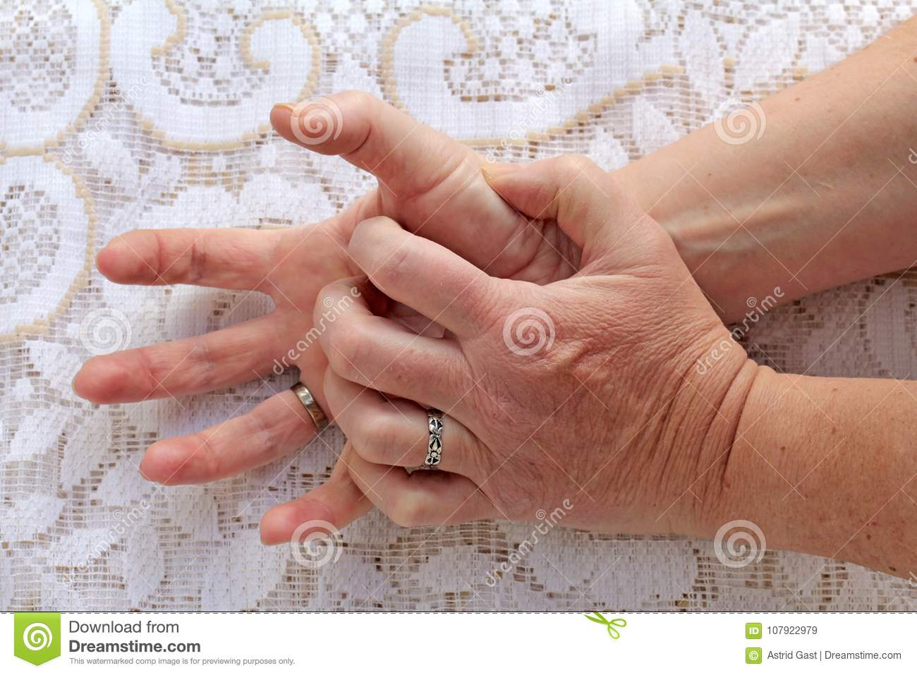 A woman with Parkinson`s disease has her hands shaking