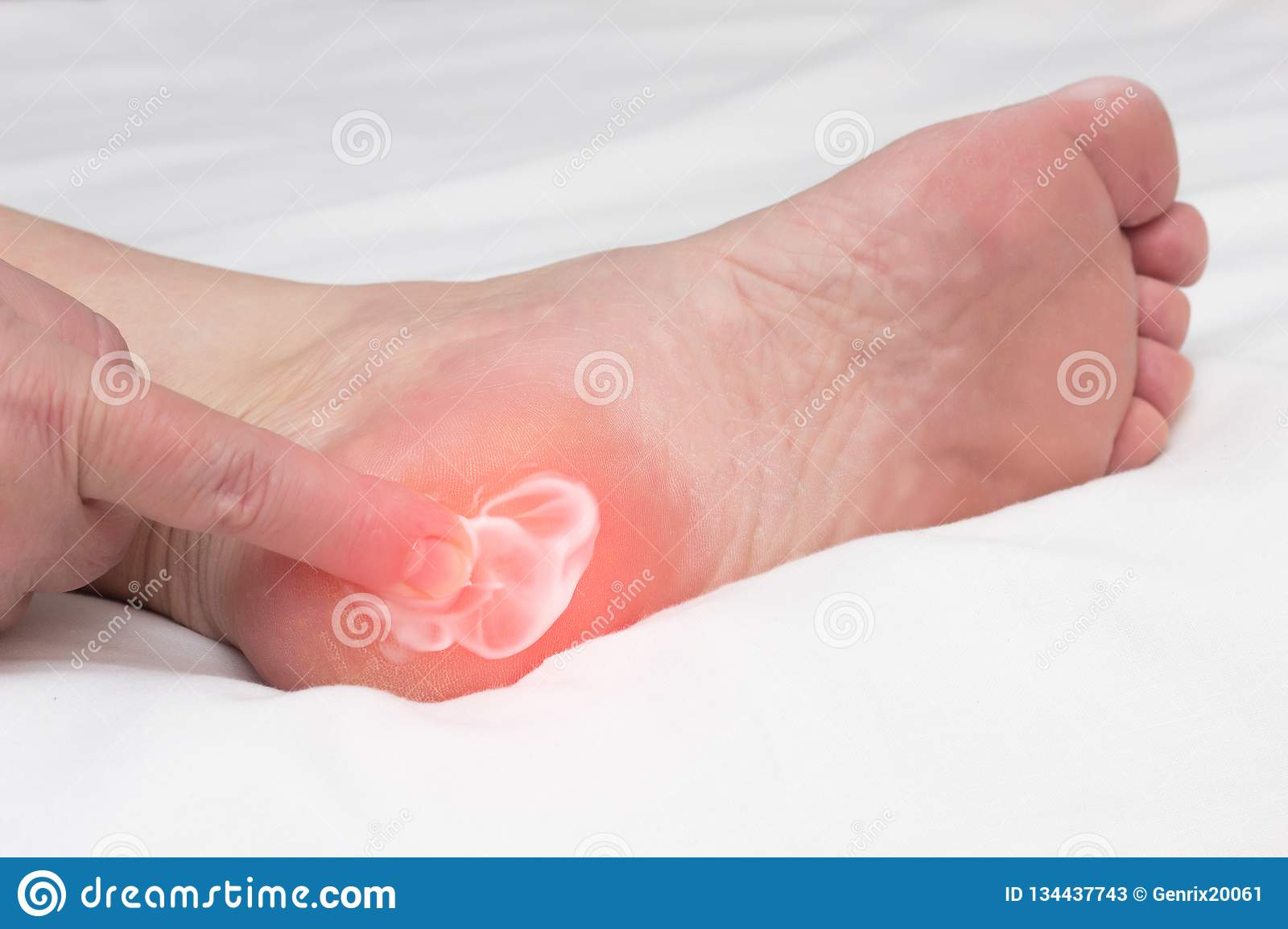 A woman rubs a healing balm cream for the treatment of thorns and osteophytes, a spot spur in the heel, removal of inflammation