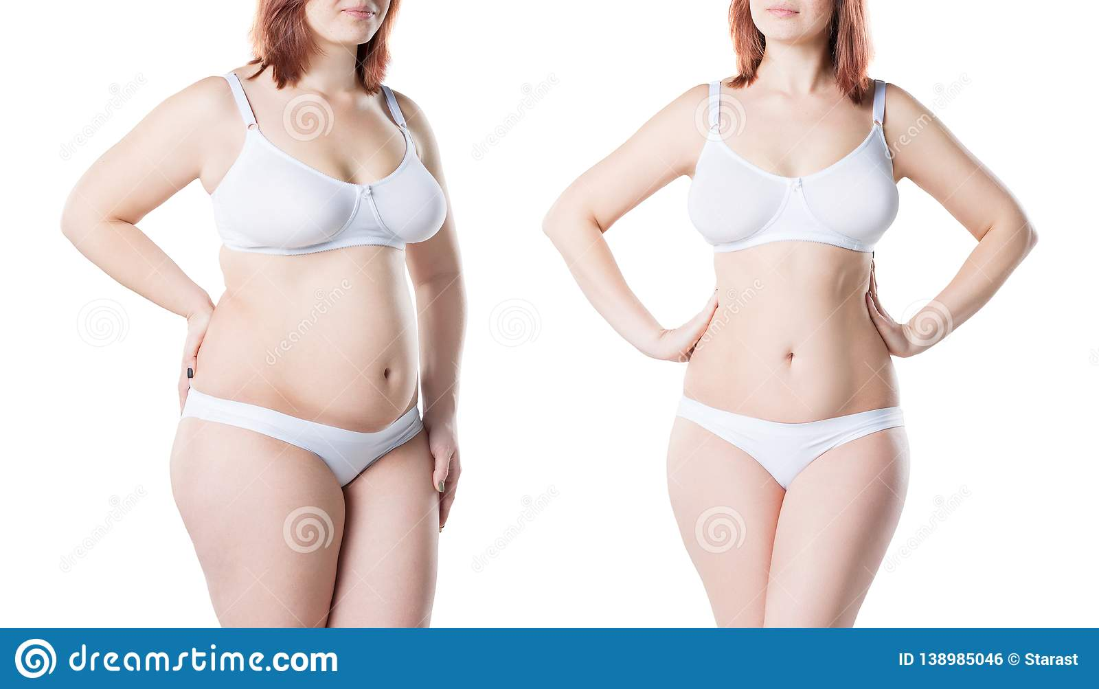Before and after weight loss plastic surgery pictures