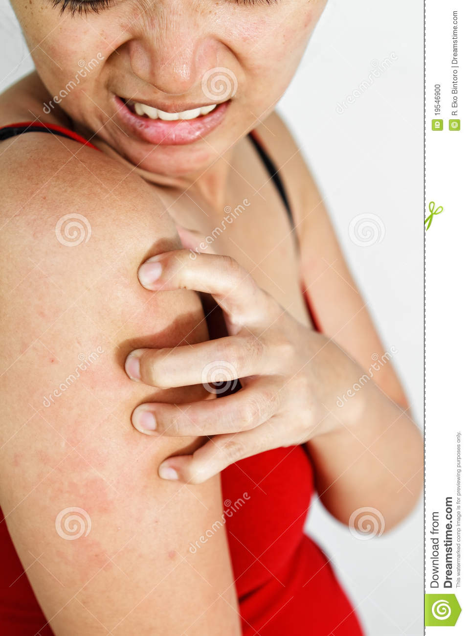 Woman Scratch Itchy Arm Stock Photo - Image: 19546900