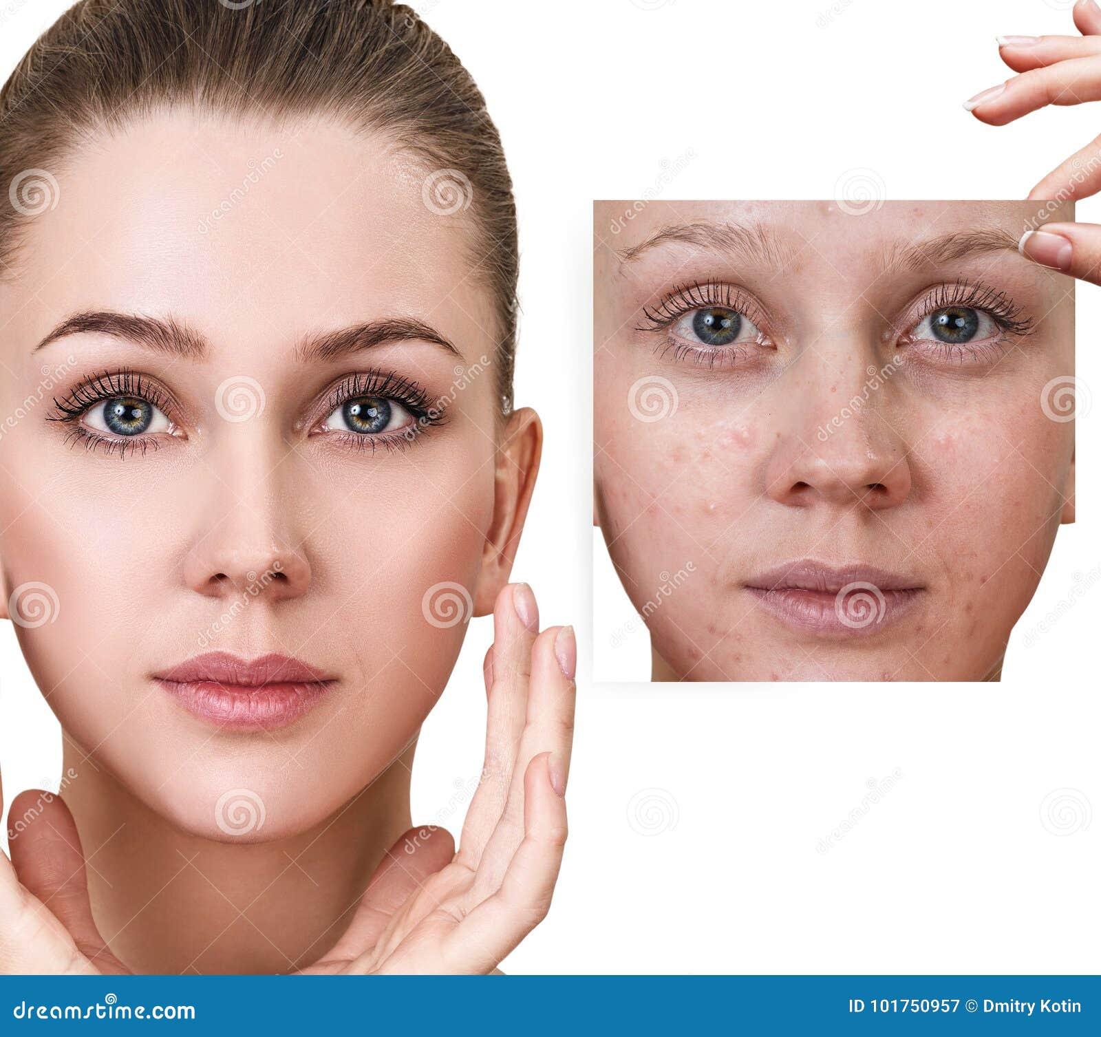 Same, Fingerprint shows on facial skin remarkable