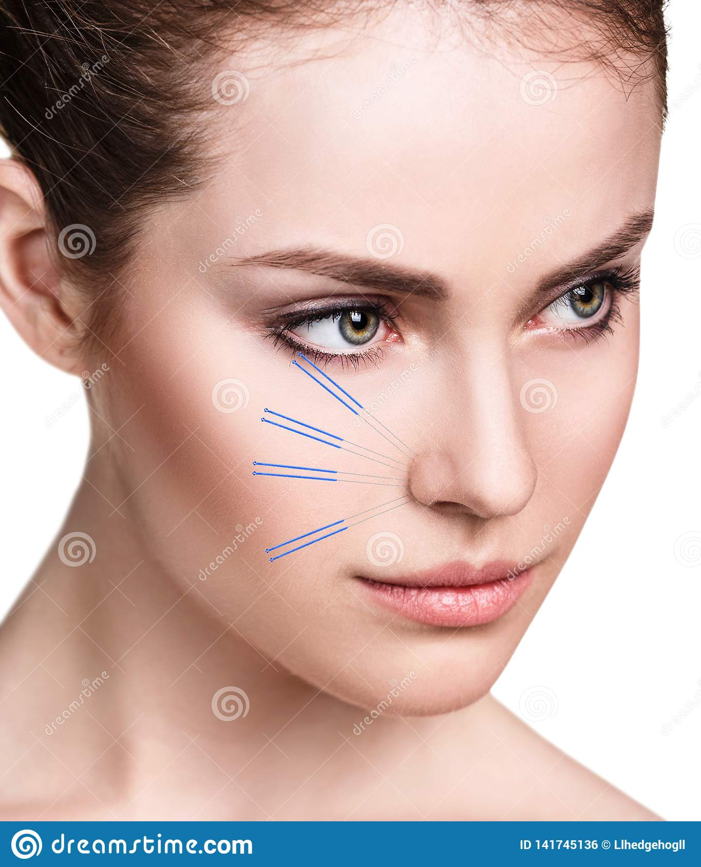Woman Undergoing Acupuncture Treatment. Stock Photo ...