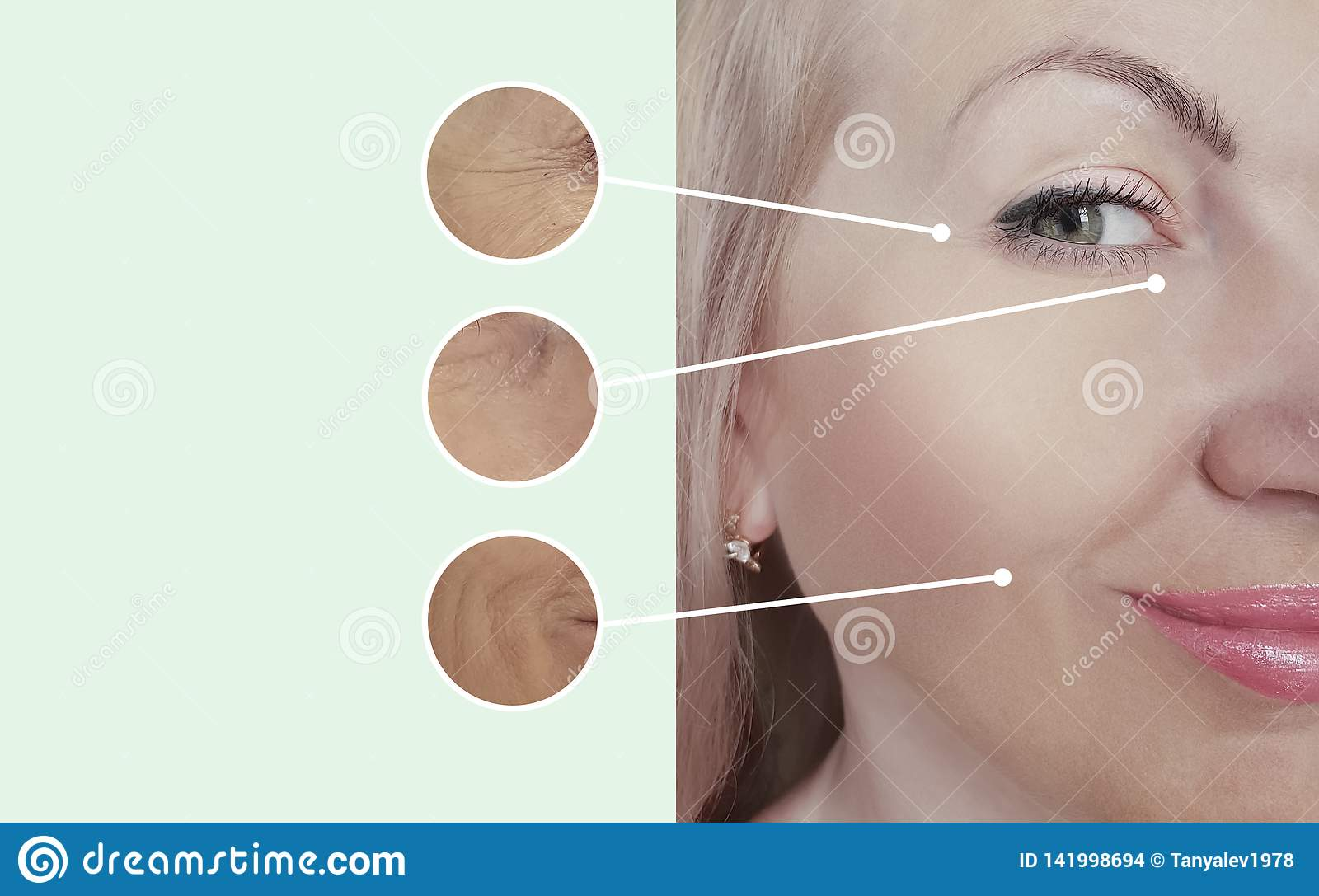 Woman wrinkles before after collage regeneration procedures contrast