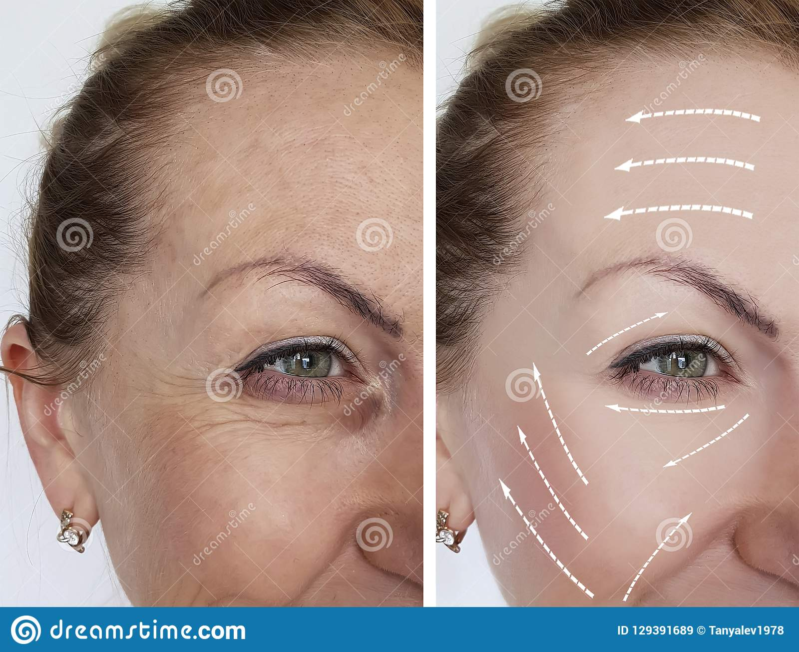 Woman Wrinkles Skin Antiaging Collagen Before And After