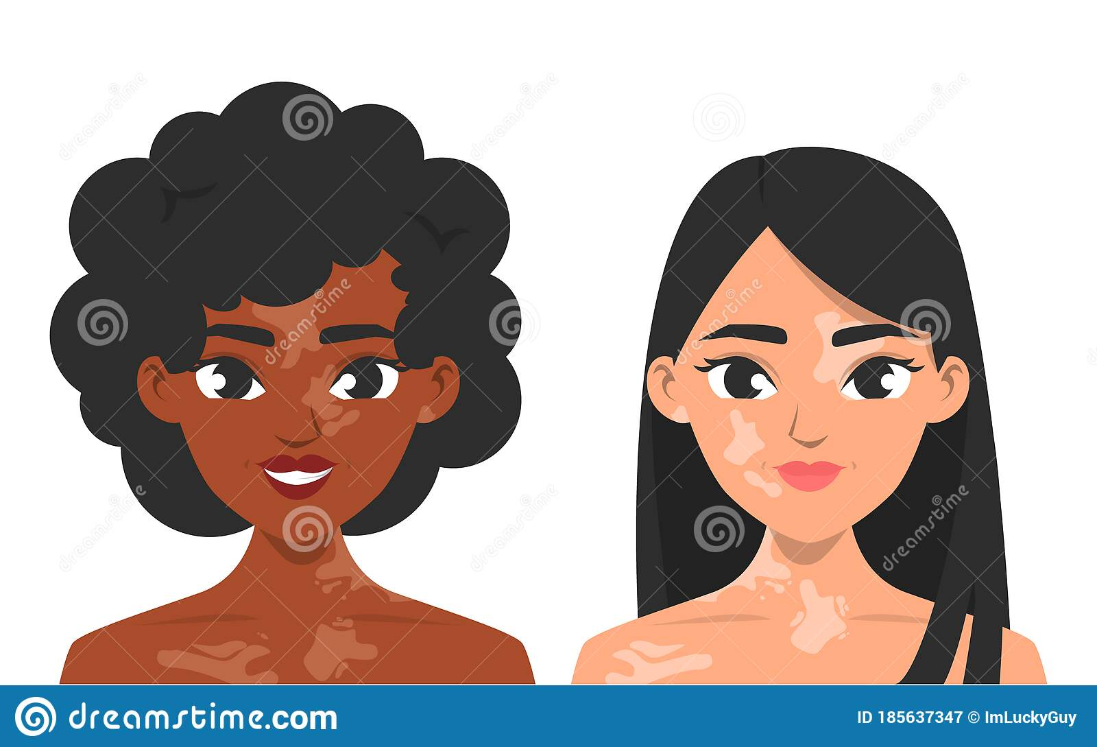 Women With Vitiligo Vector Isolated Skin Pigmentation Stock Illustration Illustration Of Human Disease 185637347
