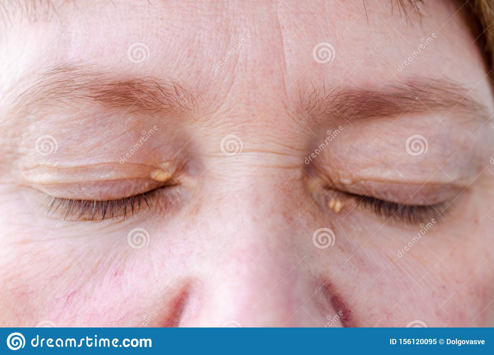 Womens eyelids with small growths due to disorders of lipid metabolism. Medical and cosmetology problem