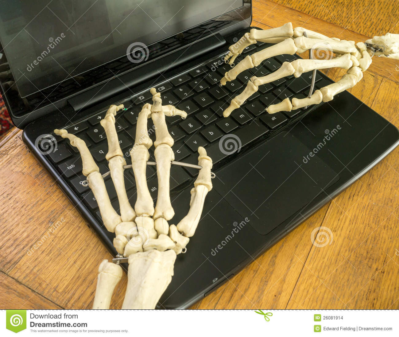 Working Fingers To The Bone Stock Images - Image: 26081914