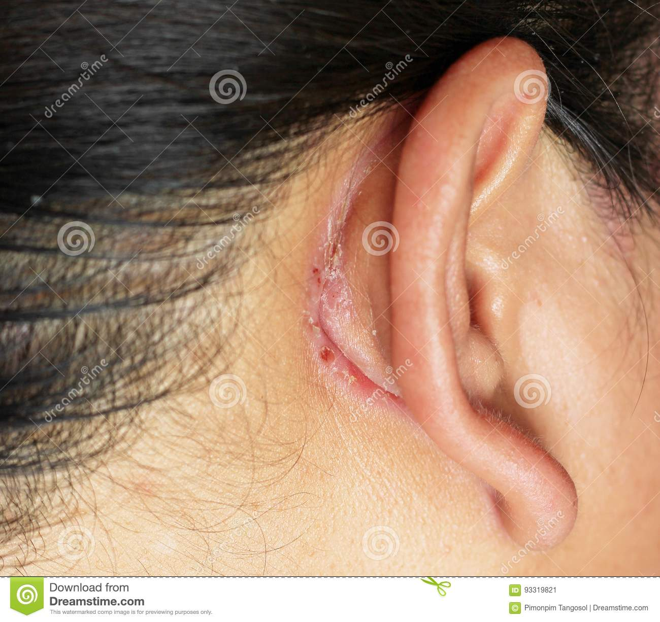 Wound behind ear stock image. Image of head, care, human - 93319821