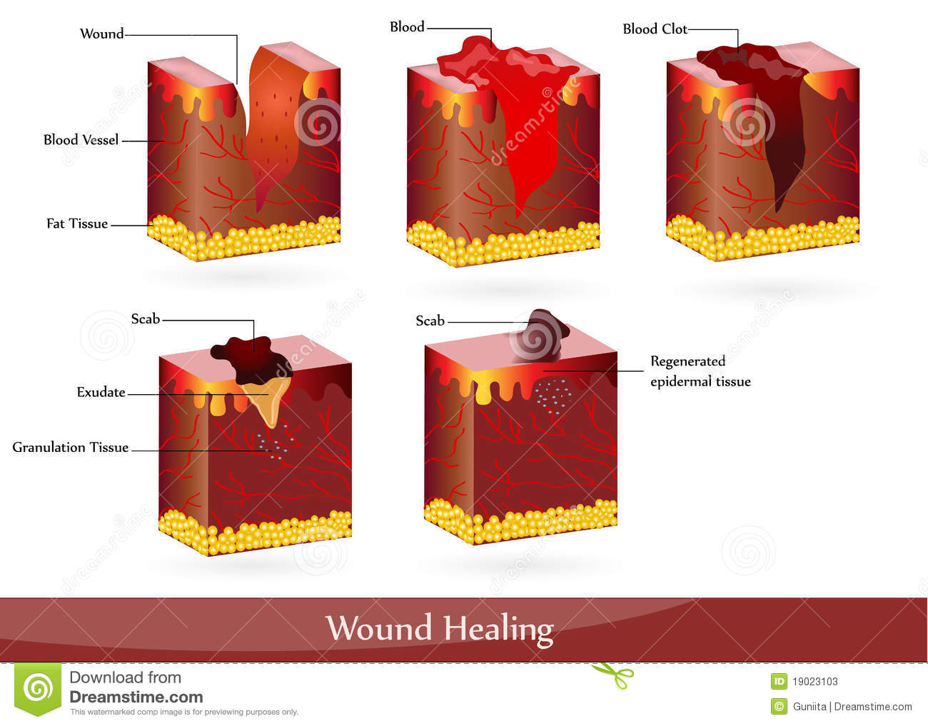 Wound healing stock vector. Illustration of anatomy ...