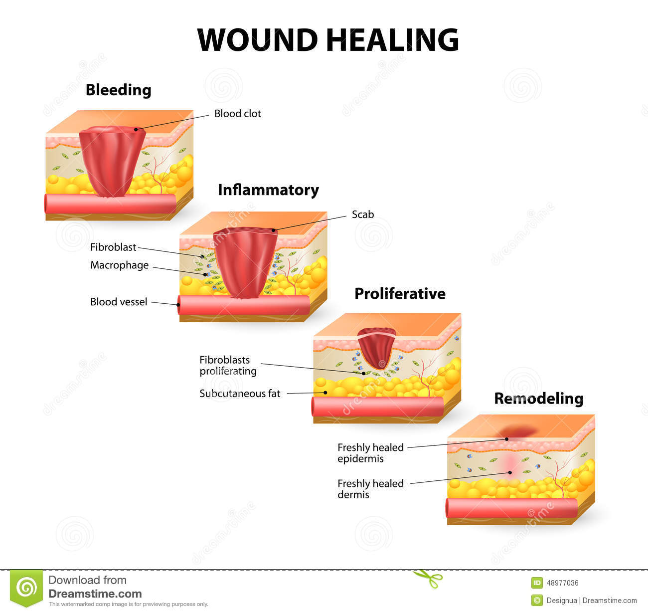 Wound Healing Stock Vector  Image Of Injury  Connective