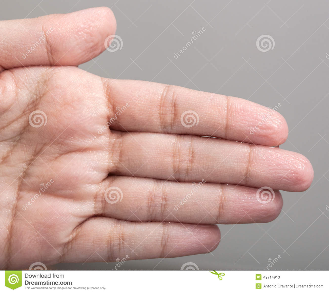Wrinkled Skin Of The Hands Stock Photo - Image: 49714913