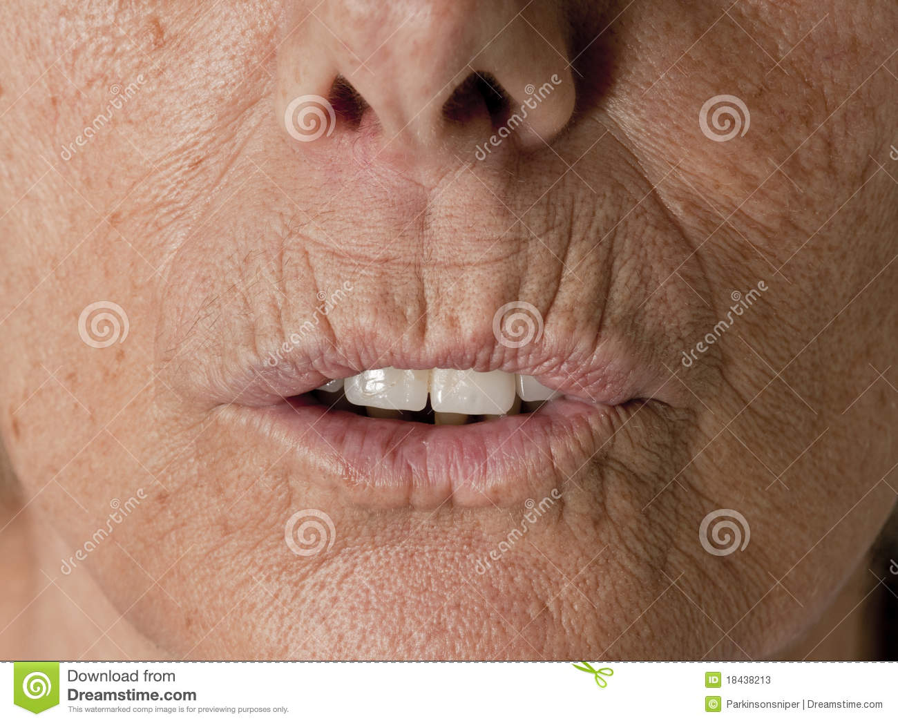 Image Gallery lip wrinkles from smoking