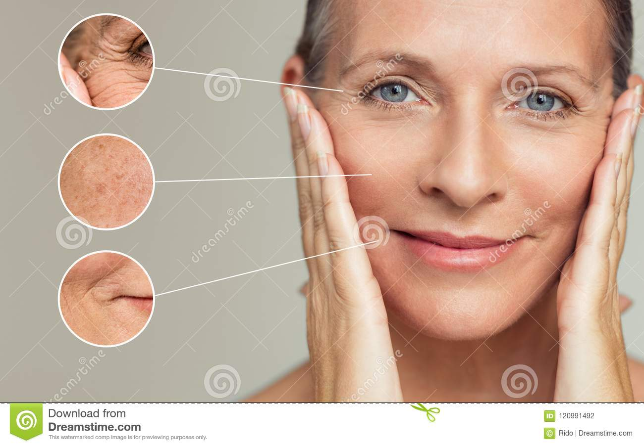 Wrinkles and skin imperfection