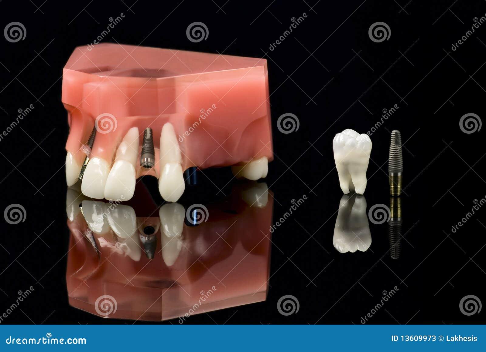 Wszczepu wzorcowa zębów zębu mądrość