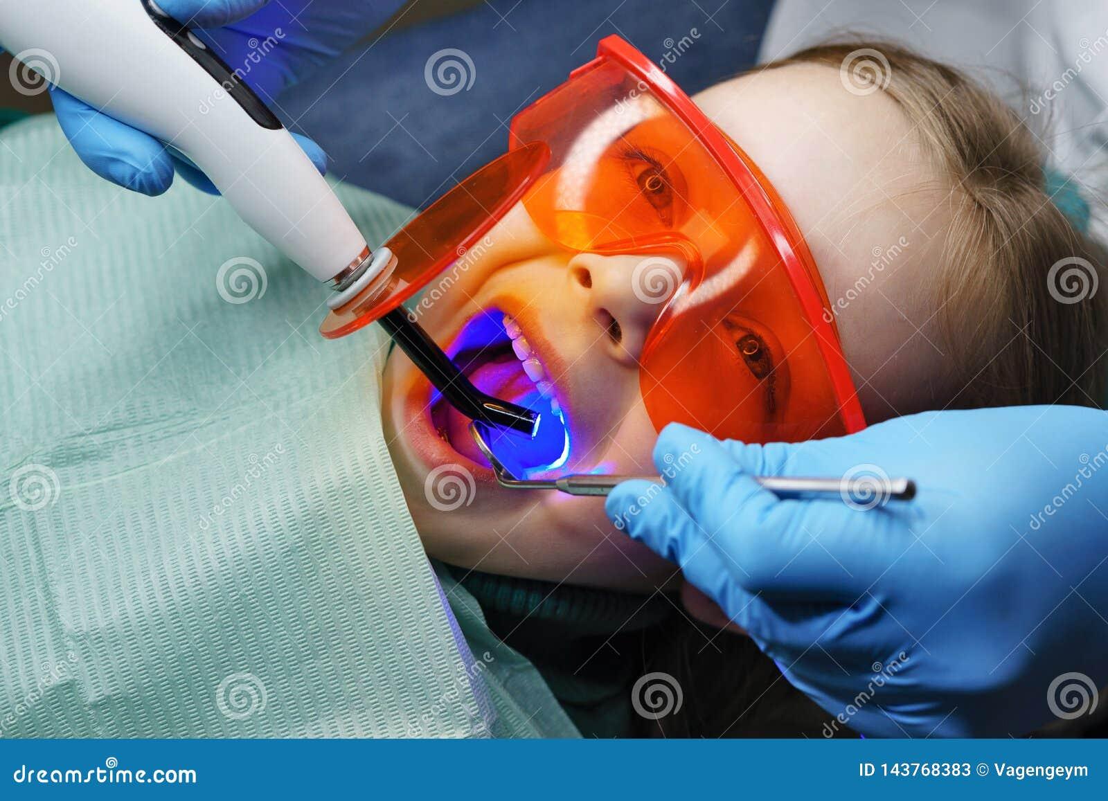 Wypełniać dojni zęby klinika stomatologicznej